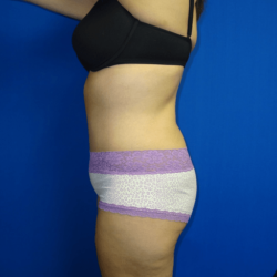 Manhattan abdominoplasty after 5